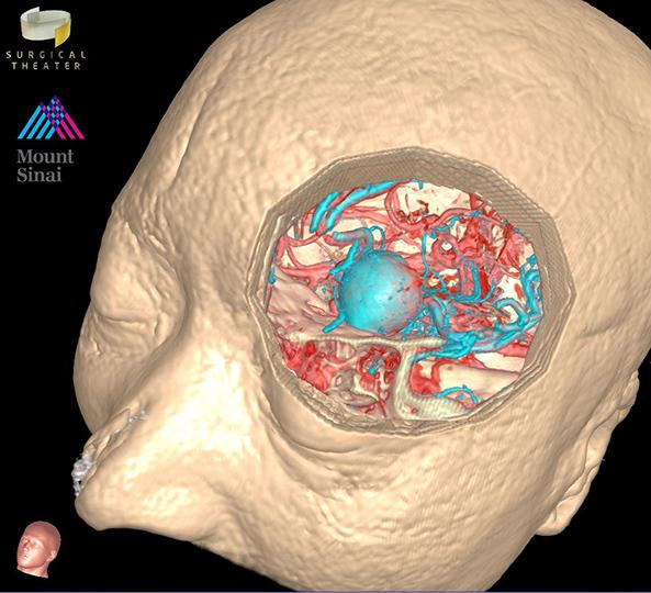 Simulation-Based Consultations in Patients with Skull Base and